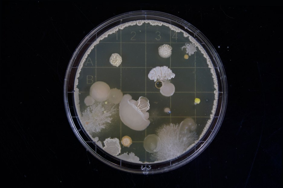 Bacteria, the Virus - by Omar Kayyal  (Photo by Miachel Schiffer).jpg